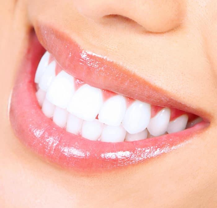 Que tratamiento para blanquear los dientes