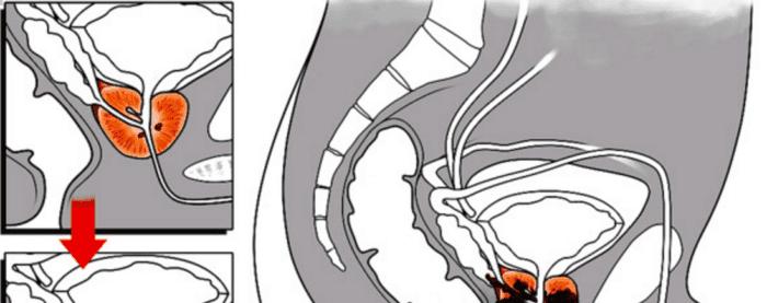 como nace el cancer de prostata