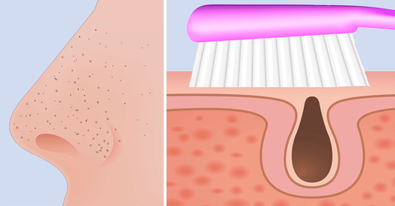 como limpiar profundamente los poros de la nariz