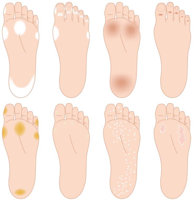 mejor medicamento para hongos en los pies