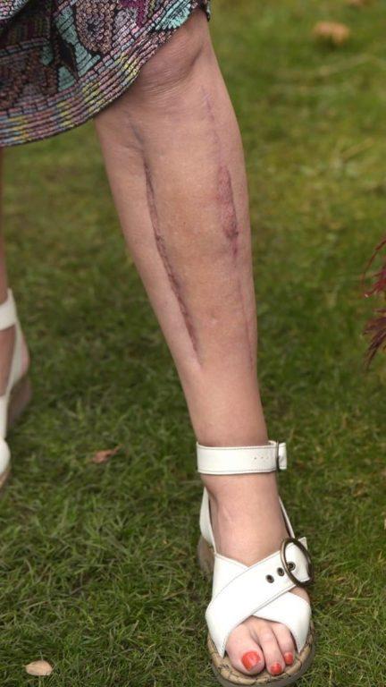 Los músculos apretados piernas las de dentro de